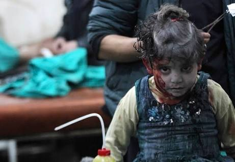 Injured child after bombing in East Aleppo, Syria.